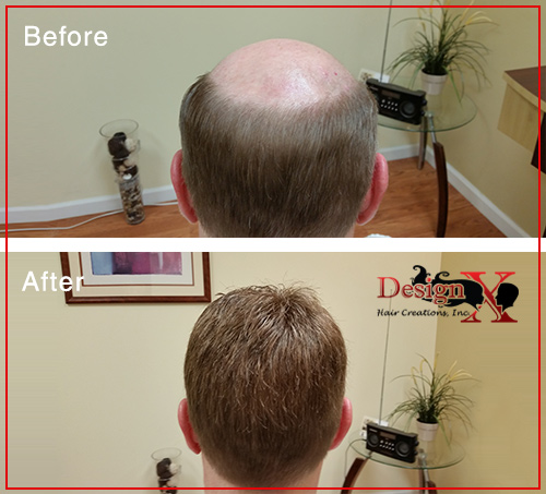 hair-loss-before-and-after2