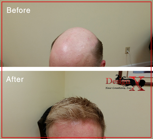 hair-loss-before-and-after3